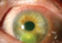corneal-infection-1.jpg