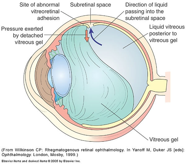 Detached_retina-250px_1.jpg