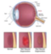 maculardegeneration-chart-1.jpg