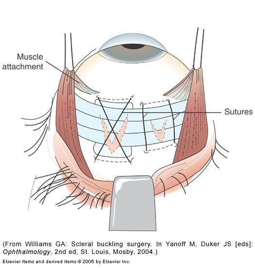 Retina_repair.jpg