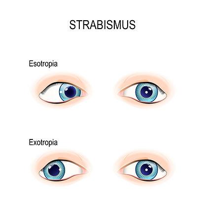 strabismus.jpg