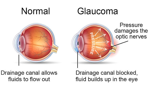 glaucoma-cause.jpg