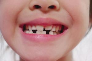 2. 永久歯に生えかわる時期と順番