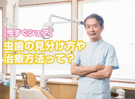 【今すぐシェア】虫歯の見分け方や治療方法って?