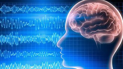 Neuro 6.jpg