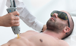 Laser Hair Removal for Men