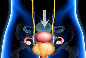 pelvic-pain-s16.jpg