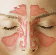 Sinuses drawn on face