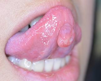 が ん 口腔