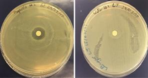 antimicrobial agar difusion tests