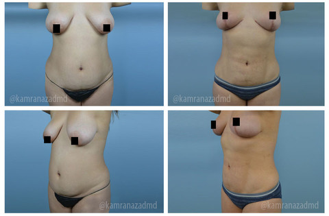 2 MONTHS POST MOMMY MAKEOVER SURGERY