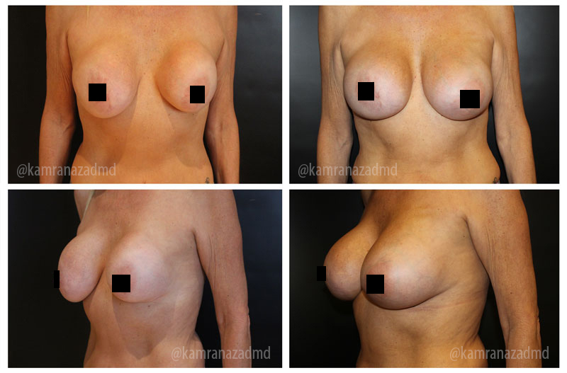 4 MONTHS POST OPERATION – HIGH PROFILE SILICONE 400CC IMPLANTS