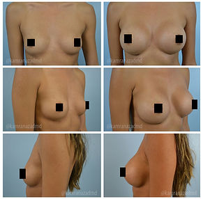 Breast Augmentation Orlando FL, Before and After Photos