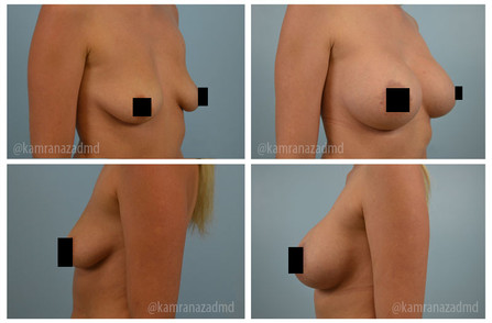 3 MONTHS POST OPERATION -  – HIGH PROFILE SILICONE 415CC IMPLANTS