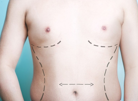 Male Plastic Surgery Increasing in Popularity