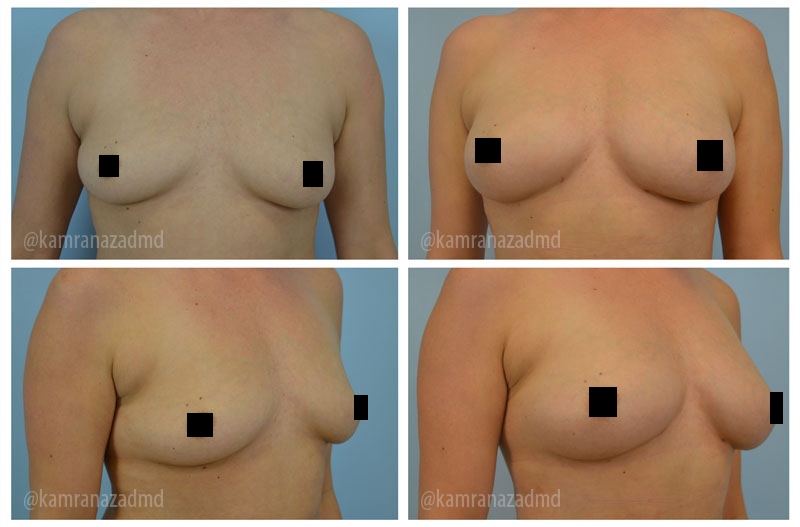 6 WEEKS POST OPERATION – 400CC FAT TRANSFERRED TO THE BREAST
