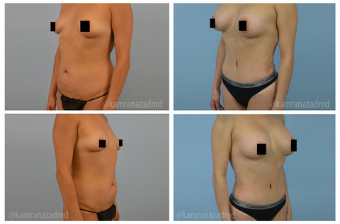 4 MONTHS POST  MOMMY MAKEOVER SURGERY