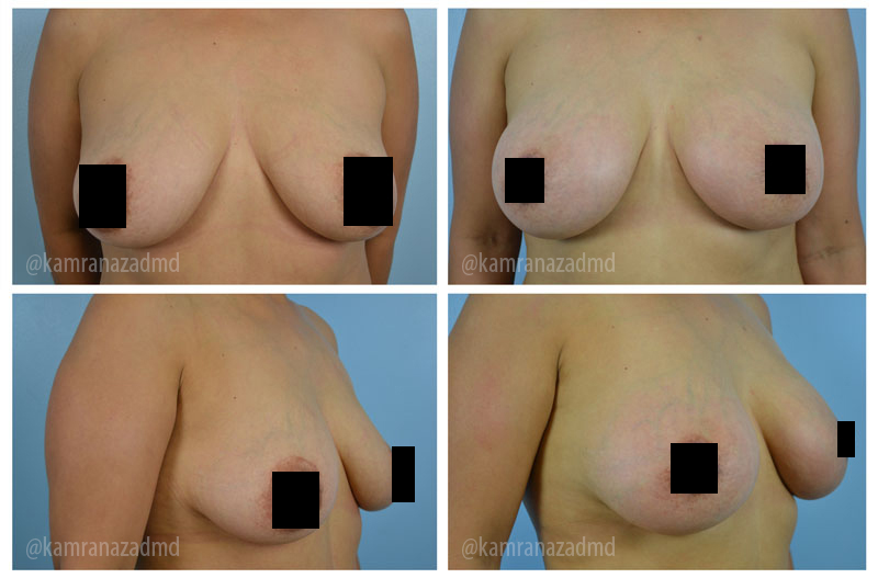 2 MONTHS POST OPERATION  – HIGH PROFILE SILICONE 295CC IMPLANTS