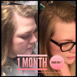 hair growth monat receeding hairline