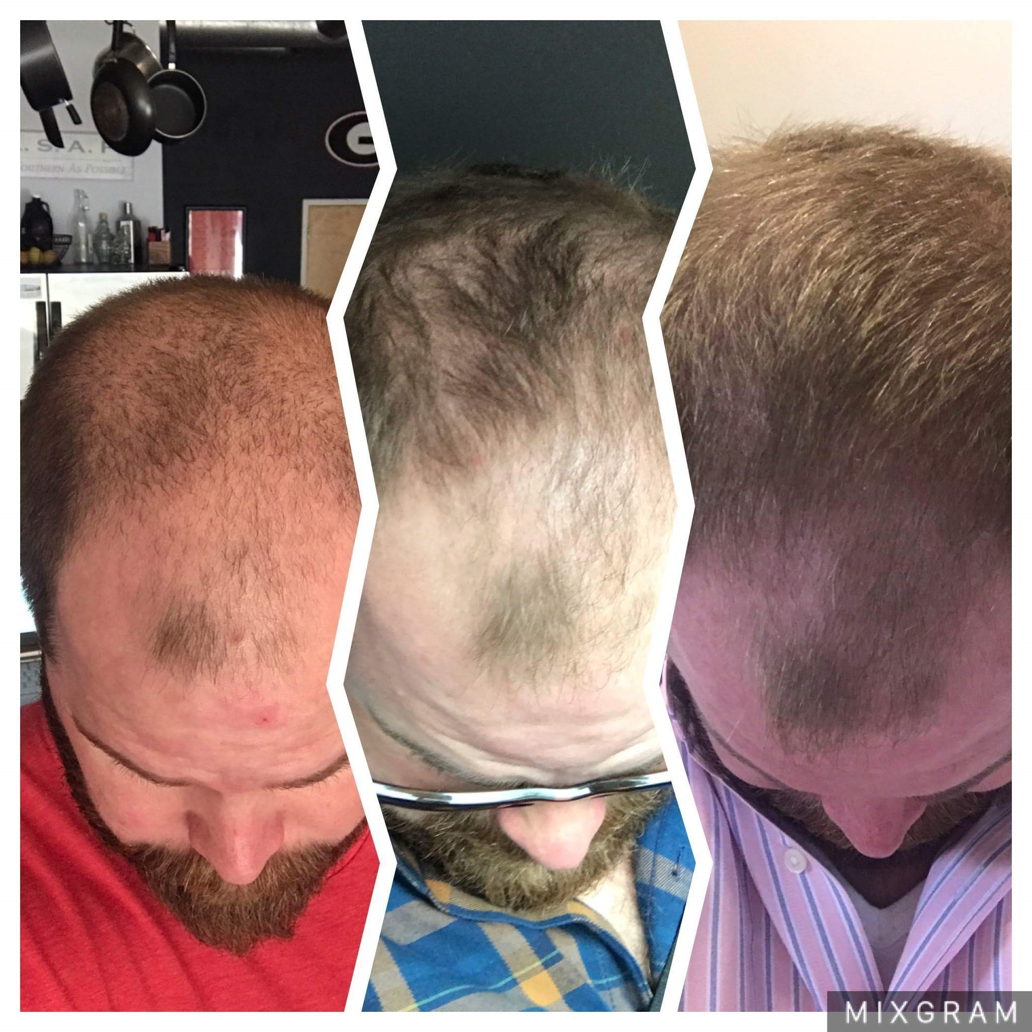 man hair growth monat