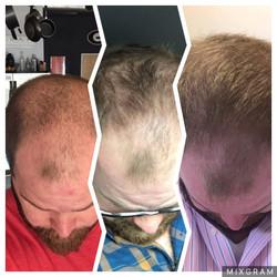 man hair growth monat