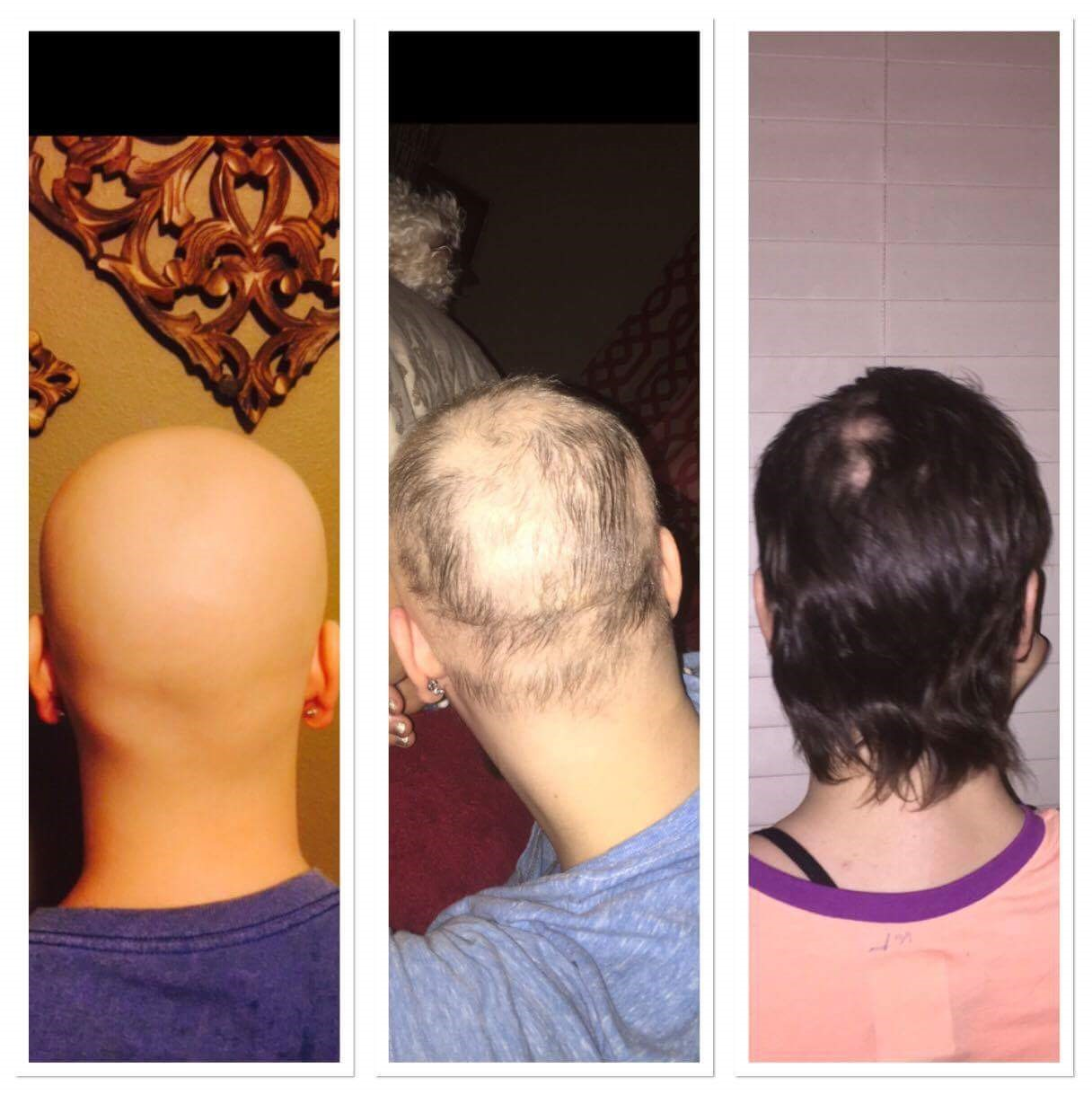 hair growth monat chemo