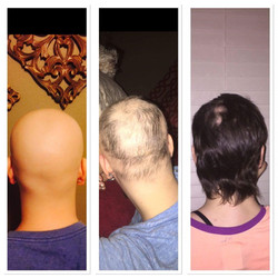 hair growth monat chemo