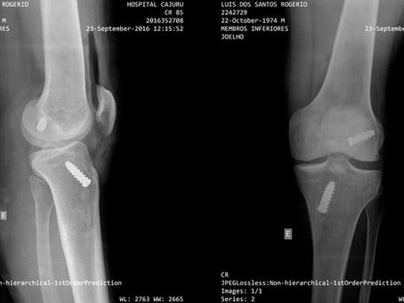 Lesão no Skateboard - Cirurgia no Joelho (LCA) - Ligamento Cruzado Anterior