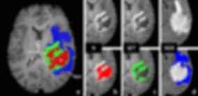 MAI-LAB won '1st place' and 'grand prize' (성과발표회 최우수상)in HeLP Challenge  Contest 1: Brain Tumor Segmentation