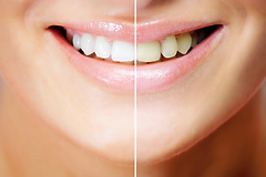 Dents inesthétiques et tâchées