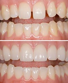 Cosmetic improvemet