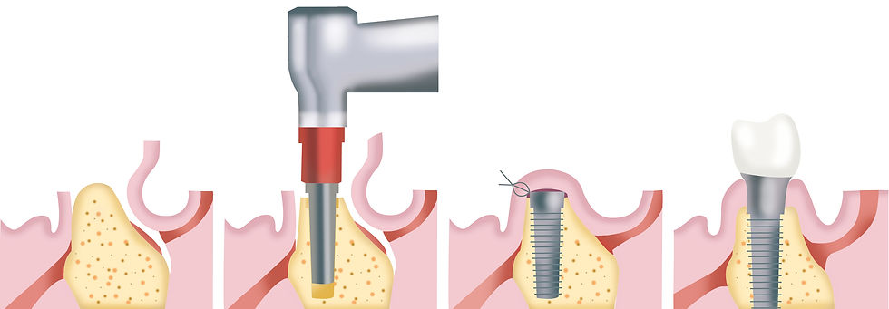 Zahnimplantate Rheinfelden Deutschland