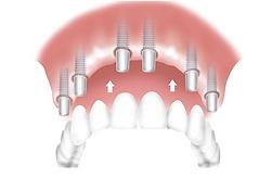 Prothèse fixe sur implant