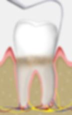 Zahnfleischbehandlung   Zahnarzt Rheinfelden