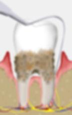 Zahnfleisch   Zahnarzt Rheinfelden