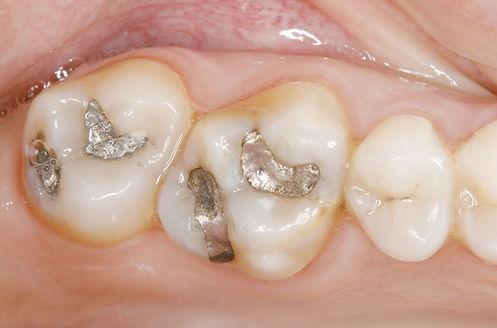 Zahnersatz | Zahnarzt Rheinfelden