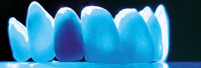 Metallfreie Zahnmedizin Basel