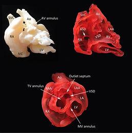 3D printing in medicine.JPG