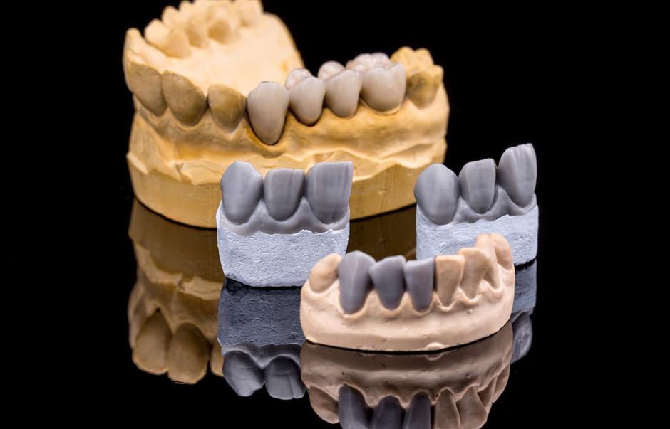 set-of-dentures-PA8JWN4.jpg