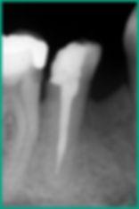 Endodontia - Clinica CPRO