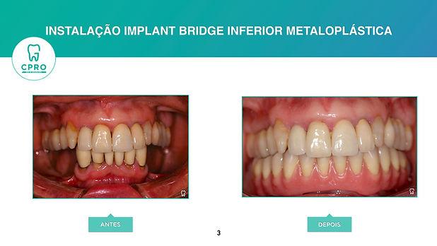 Implant bridge inferior.jpeg