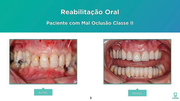 Caso Clínico de Reabilitação Oral em