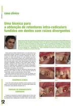 14.Artigo na Revista Saúde Oral -Retent