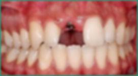 Implantologia Oral - Clínica CPRO