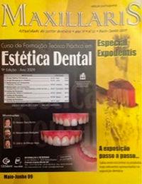 Artigo na Revista Maxillaris - Curso de Próteses Fixas sobre Dentes e Implantes