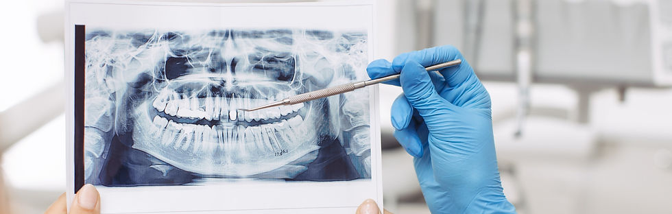 dentist-showing-x-ray-image-to-patient-T