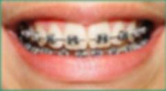 Ortodontia - Clínica CPRO