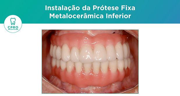 Reabilitação Oral com Implantes - Protoc
