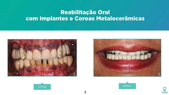 Reabilitação Oral com Implantes e Coroas