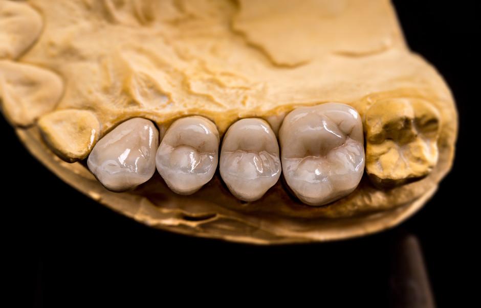 dental-prosthesis-PYR6RKL.jpg